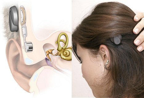 Medel Bonbridge Hearing Implant